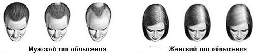 почему выпадают волосы у женщин и мужчин